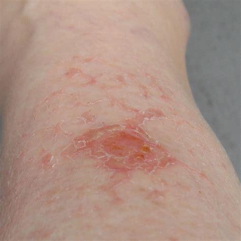 Spider Bite Images Photos Of Spider Bite Probaway Hacks