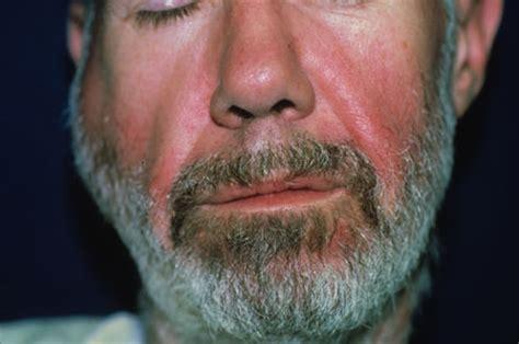 hivaids oral manifestations images hiv