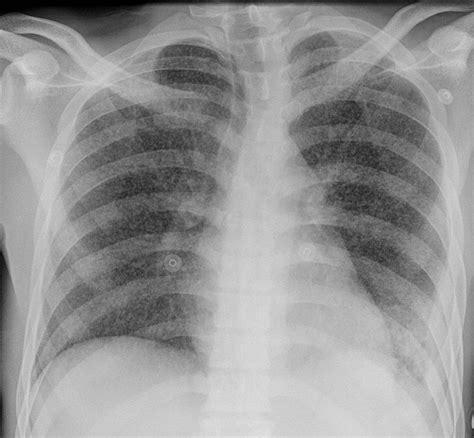miliary tuberculosis image radiopaediaorg
