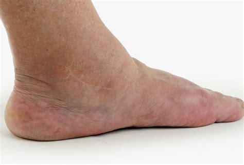 diabetes edema legs white blood cell types wbc