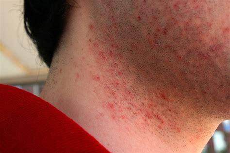 razor bumpsburn    bump