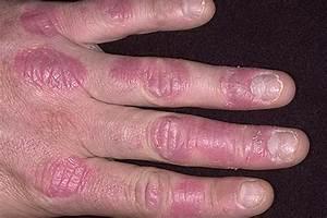Моноклональные антитела при псориазе отзывы