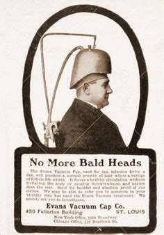 Vintage baldness ads and hair loss cures   Hair Loss News