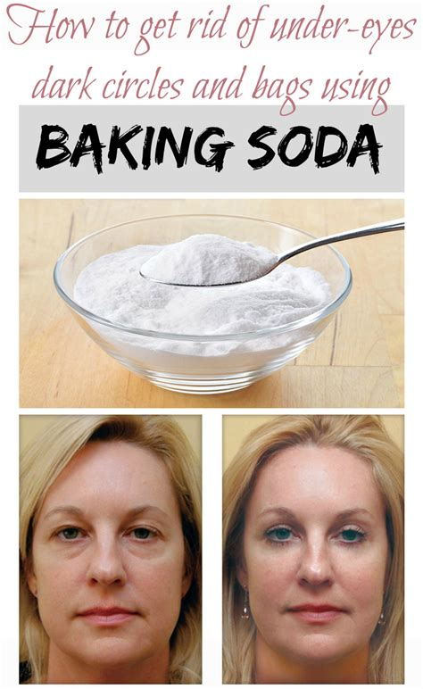 How to get rid of under eyes dark circles and bags using baking soda   Weight loss mag