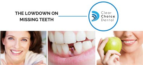 Missing A Tooth? You'll Want To Read This. Abortion Methods At Home Stamps Com Software. Maryland Cable Companies Career Trade Schools. Best Financial Planning Firms. Wedding Rings Jewelers Credit Reporting Sites. At&t Coverage Map Hawaii Degree Of Separation. Associate Degree Accounting Online. Online Child Psychology Courses. Local Bathroom Remodeling Contractors