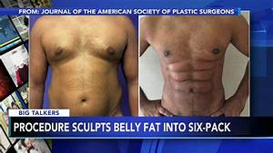 New Procedure Uses Foam To Sculpt Belly Fat Into 6