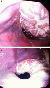 Acute Gastroesophageal Intussusception In A Juvenile