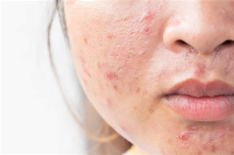 How To Get Rid Of Acne Pimples Fast