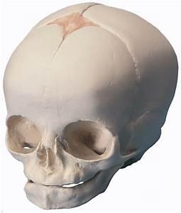 Microcephalic Skull  Hydrocephalic Skull   Fetal Skull