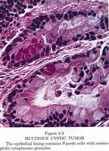 Pathology Outlines   Adenofibroma
