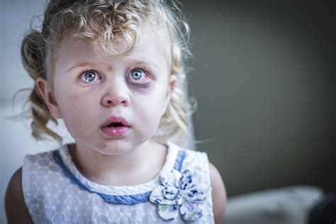 Reducing Child Abuse
