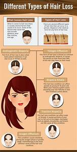 PPT Different Types Of Hair Loss PowerPoint Presentation