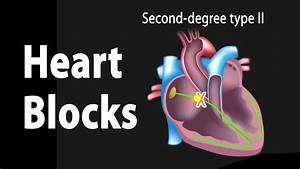 Heart Blocks  Anatomy And Ecg Reading  Animation