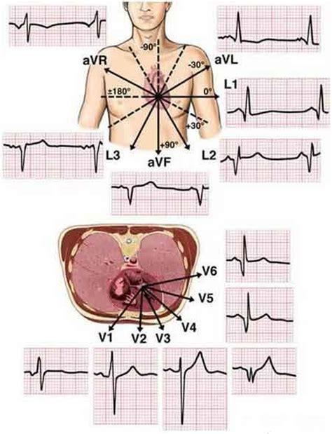 What is ECG / EKG (Electrocardiogram)