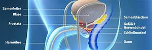 risiko prostatakrebs