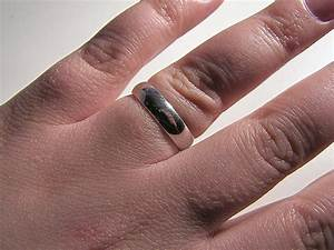Removing A Ring Off A Swollen Finger  U00ab My Patients U0026 39  Guide