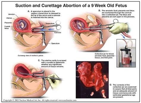Cytotec A Las 9 Semanas Abortion Methods The Gruesome Reality Of How Babies Are