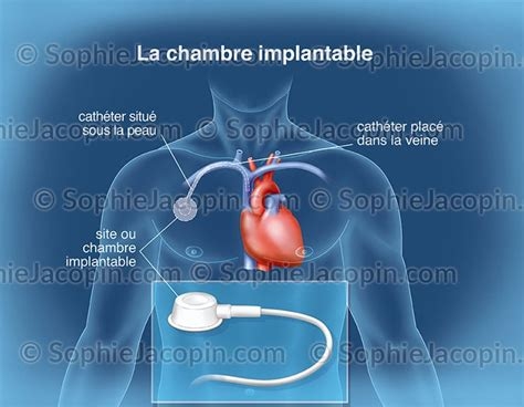 pansement chambre implantable chambre implantable illustration medicale didactique