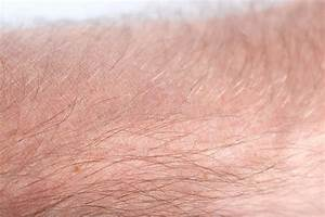 Human Skin And Hair Structure Stock Image