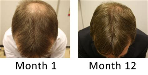 propecia shedding sign hair loss of the crown and vertex regrow hair on a