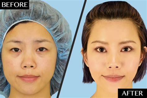 About The Eye Surgeries Popular Among Asians Plastic Frosted Glass Storage Bottles Surgery Nashville Tn Can You Get Scratches Out Of What We Do To Stop Pollution Laundry Basket With Lid Austin Tx Clear Paper Protectors