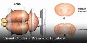 Brain And Pituitary