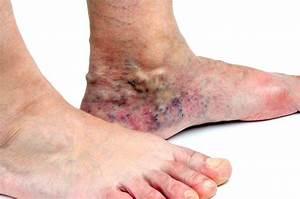 sintomas de trombose nas pernas