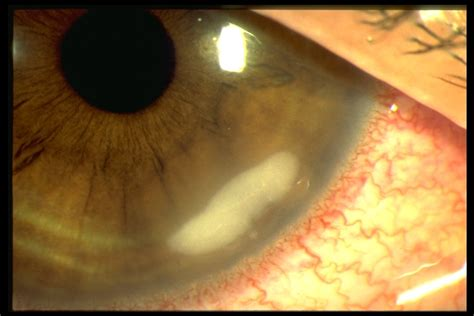 bacterial keratitis american academy  ophthalmology