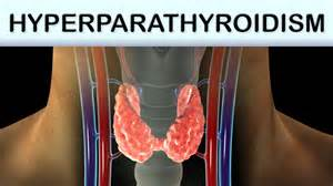 What You Need To Know About Hyperparathyroidism! - GetDoc Says  Parathyroid Disorders Hyperparathyroidism