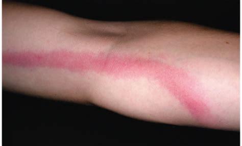 infiammazione vasi linfatici infezione della pelle infiammazione