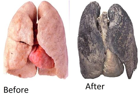 Lungs After And Before Healthy World Pinterest Lungs