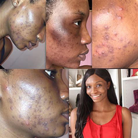 How To Remove Pimples, Acne and Black Spots Naturally In