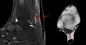 Achilles Tendon Pathology