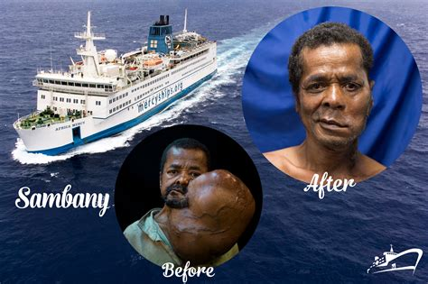 click    mercy ships  work