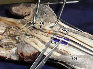 Dissection Of Flexor Compartment Of The Right Forearm And Palm Showing
