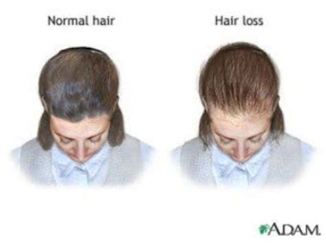 Female Hair Loss And Pcos Find Out What's Causing Your