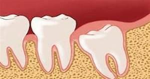 Dents Qui Se Déchaussent Photos : voil pourquoi on ne devrait jamais se faire retirer les dents de sagesse elles sont en fait ~ Medecine-chirurgie-esthetiques.com Avis de Voitures