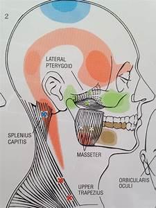 Headaches And Trigger Points - Shiatsu Massage