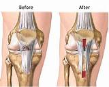 Photos of Acl Surgery Rehab Protocol