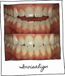 Benefits Of Invisalign  Is Invisalign Right For You