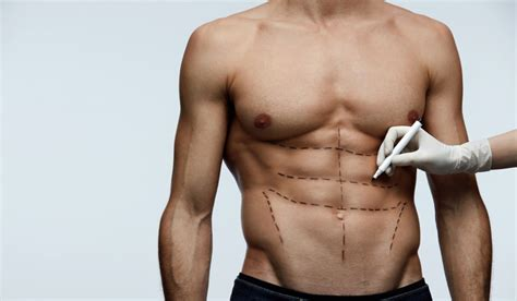 abs pack six plastic abdominal surgery etching toned guys surgeons muscles liposuction week through help