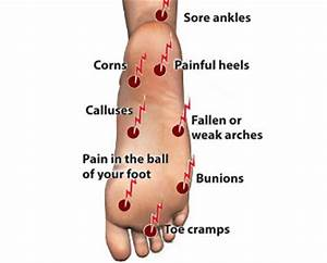 Diagram Of Foot Pain