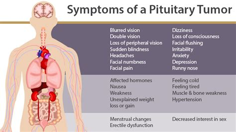 Pituitarytumor Is An Abnormal Growth In The Pituitary. Birthday Celebration Signs. Pisci Signs Of Stroke. Fracture Signs. Bronchitis Pneumonia Signs. Anime Couple Signs. Cord Compression Signs. Process Signs. Preschool Signs Of Stroke