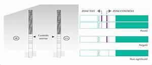E Herd Test : john libbey eurotext m decine th rapeutique p diatrie test de diagnostic rapide pour la ~ Watch28wear.com Haus und Dekorationen
