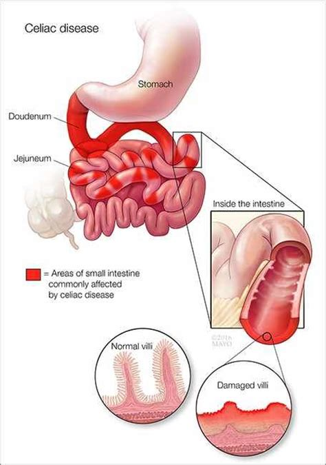 32 best images about internal medicine on pinterest what