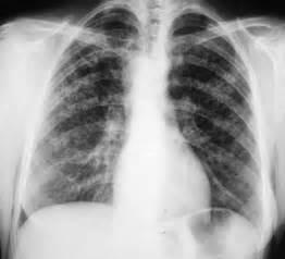 Imaging Interstitial Lung Disease - Genetic Disorders Blog Articles Interstitial lung disease