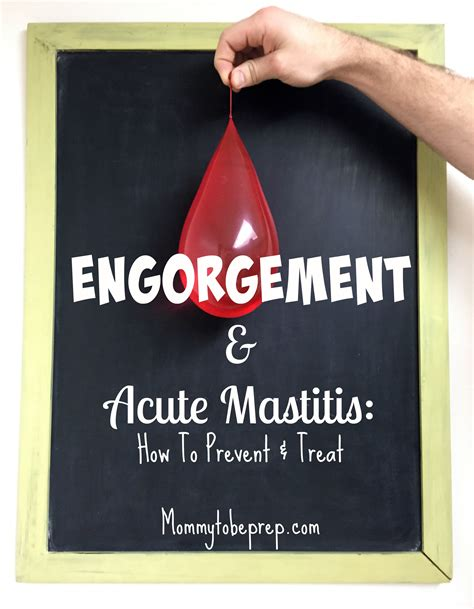 Engorgement Acute Mastitis How To Prevent Treat