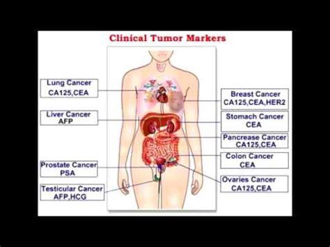 tumor markers alpha fetoprotein beta hcg ca 125