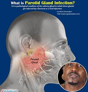 What Is Parotid Gland Infection  U0026 How Is It Treated