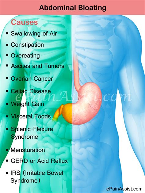Abdominal Bloating Home Remedies And Prevention Tips